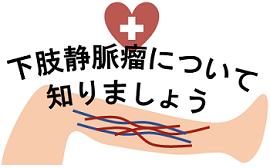 下肢静脈瘤(かしじょうみゃくりゅう)について知りましょう